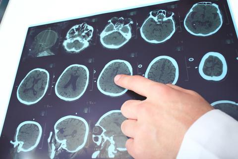 neurologia - Konsultacje specjalistyczne