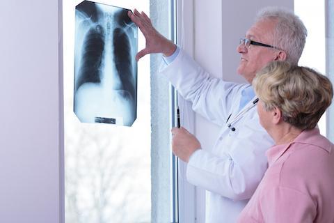 pulmunologia 1 - Konsultacje specjalistyczne